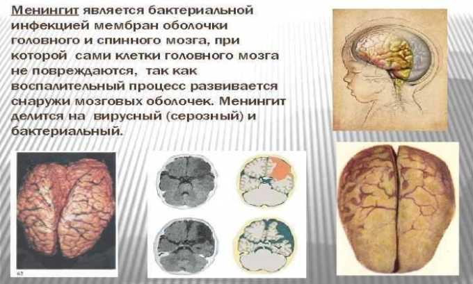 Препарат применяется при бактериальном менингите