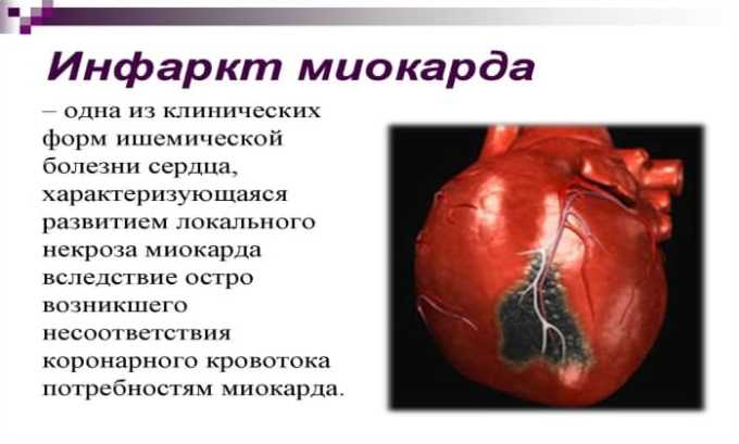 Применение Лидокаина показано при инфаркте миокарда