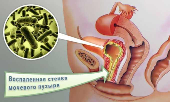 Препарат назначается для лечения мочеполовых инфекций