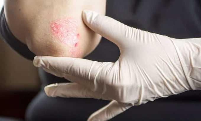 Медикамент прописыват для лечения кожных инфекций