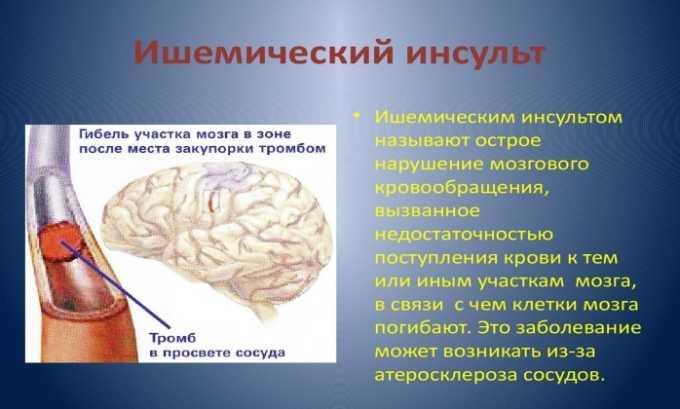 Таблетки назначают в качестве профилактики ишемического инсульта