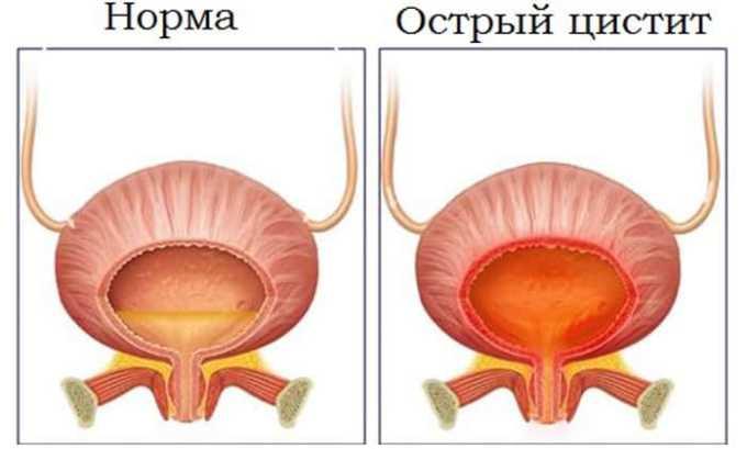 Чаще всего у больных диагностируется острый цистит