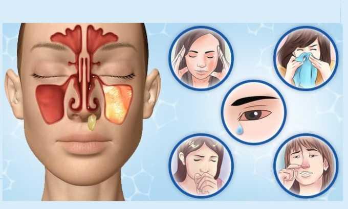 Сумамед может спровоцировать появление аллергической реакции