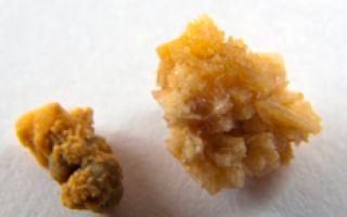 Оксалатные камни в почках — причины, лечение и диета