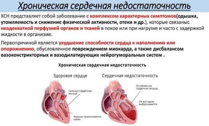 Прямыми показаниями к применению Эналозида Моно считаются лечение хронической сердечной недостаточности