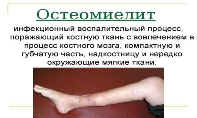 Лекарство продуктивно работает в отношении остеомиелита
