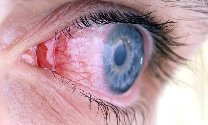 При заболевании глаз врачи прописывают пациентам данный препарат