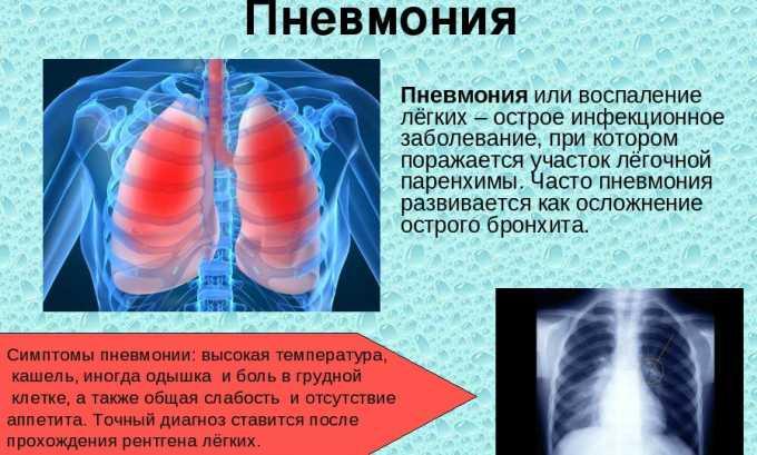 Антибиотический препарат применяется при пневмонии, воспалении легких