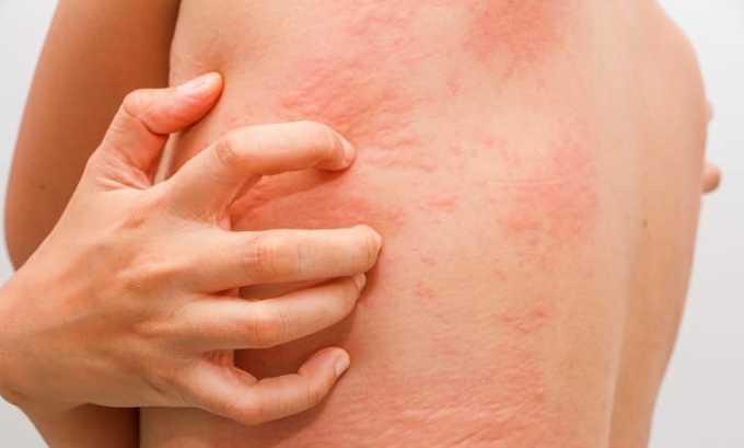 При неправильном дозировании или режиме приема антибиотика возможно проявления-крапивницы