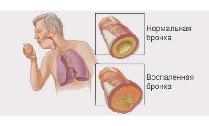 Прием препарата показан при бронхитах