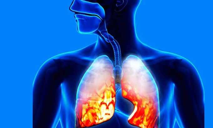 Привитый человеческий организм способен будет самостоятельно справиться с пневмонией
