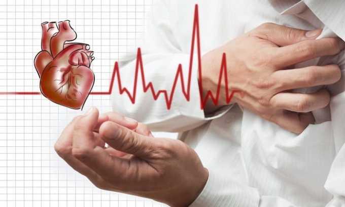 Если пациент ранее перенес инфаркт миокарда принимать препарат запрещено