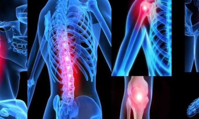 Препарат применяется при воспалительных и дегенеративных процессах в суставах
