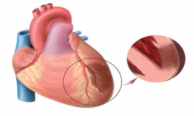 Препарат противопоказан при патологии работы сердца