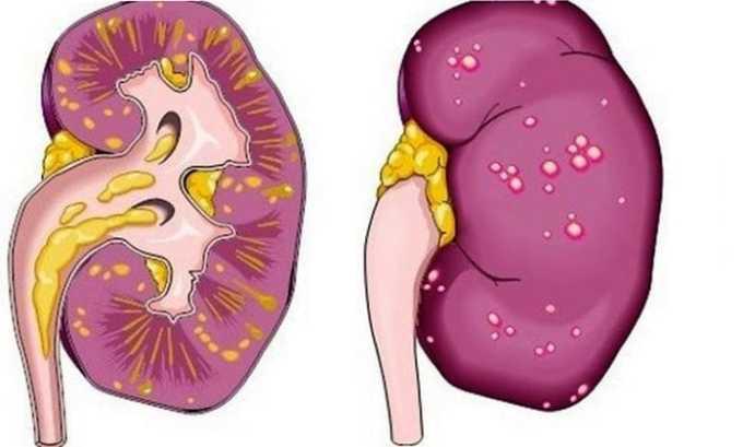 Препарат назначается врачом в случае почечного ацидоза