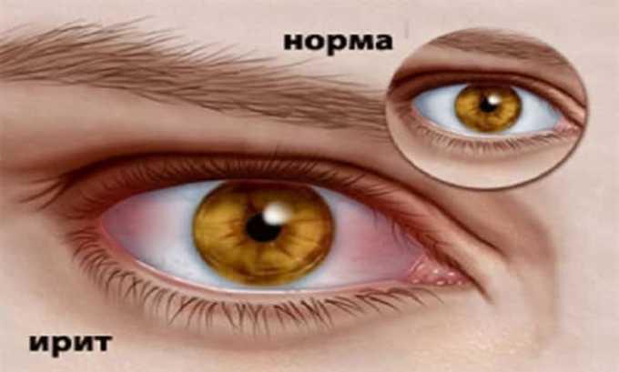 Применение глазной мази показано при ирите