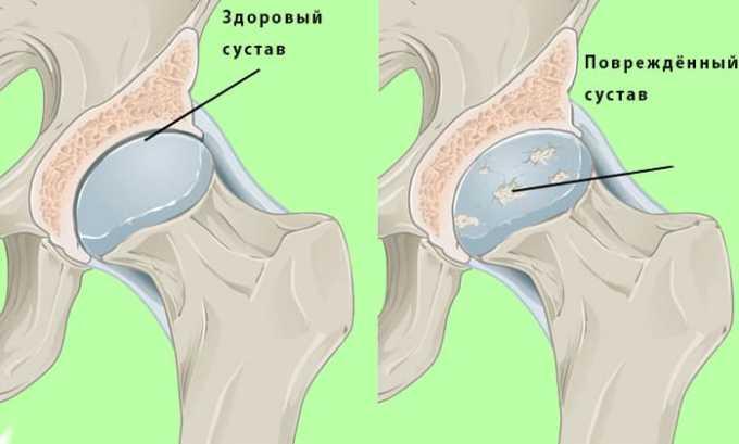 Препарат назначают при дегенеративных процессах в суставах