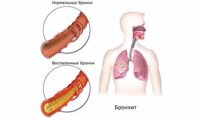 Также препарат можно назначать если присутствует обострение хронического обструктивного бронхита