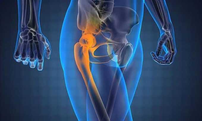 Вольтарен назначают при болезнях суставов