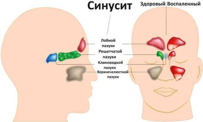 Рапиклав назначают при лечении синуситов