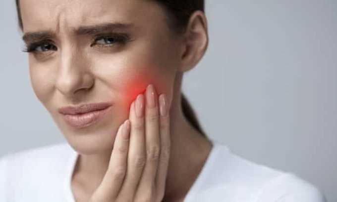 Лекарство назначают при сильной зубной боли