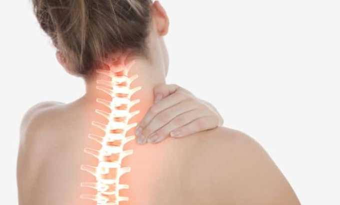 Препарат применяется при заболеваниях позвоночника, сопровождающихся болевыми ощущениями
