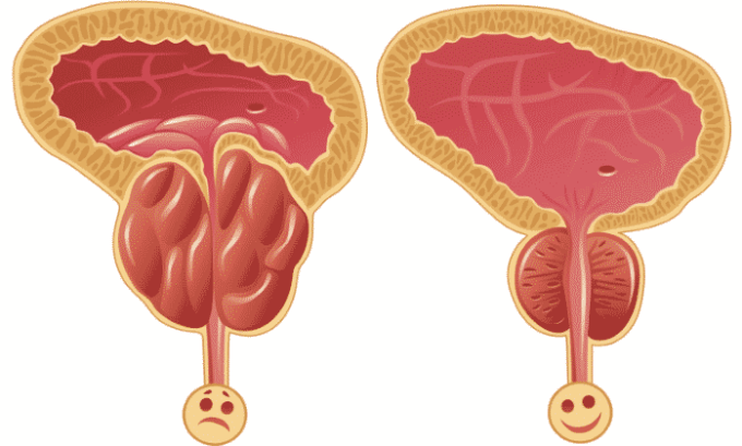 Также лекарство часто используют в процессе лечения простатита
