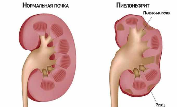 Большая часть случаев пиелонефрита возникает по причине активной жизнедеятельности болезнетворных бактерий, которым успешно противостоит 5-нок