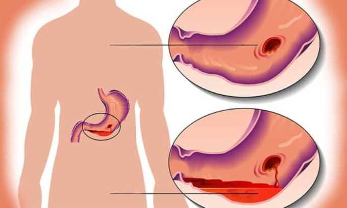 От приема препарата могут появиться побочное явление в виде перфорации стенок желудка