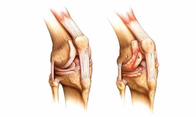Также гель назначают при артрите