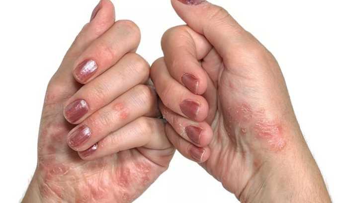 Склеродермия является показанием к применению Полькортолона