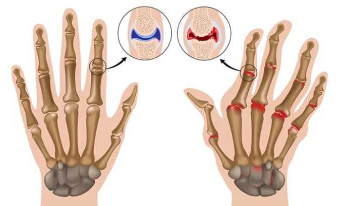 Лекарственное средство назначают для устранения ревматоидного артрита