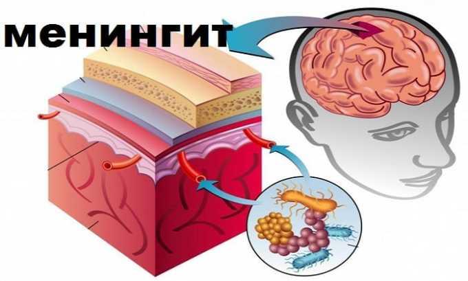При менингите бактериального типа принято назначать прием препарата Медопенем