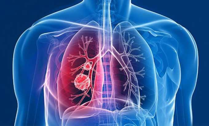 Кеналог противопоказан при туберкулезе
