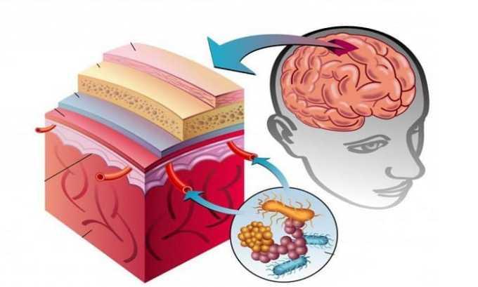 Ротацеф рекомендуется принимать при менингите