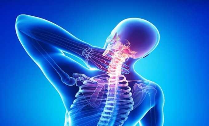 Препараты могут применяться одновременно при терапии остеохондроза