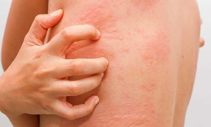 Абактал 400 используют для лечения дерматологических инфекционно-воспалительных болезней