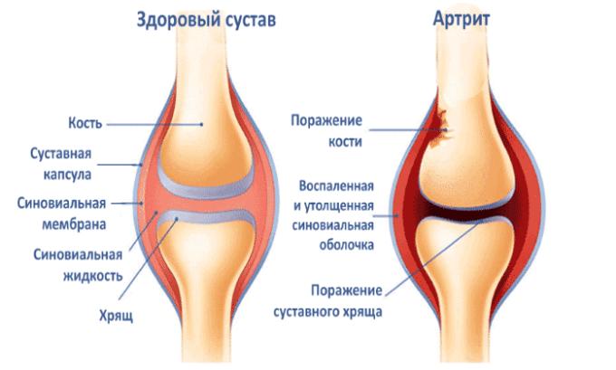 Суспензию для инъекций назначают при артрите
