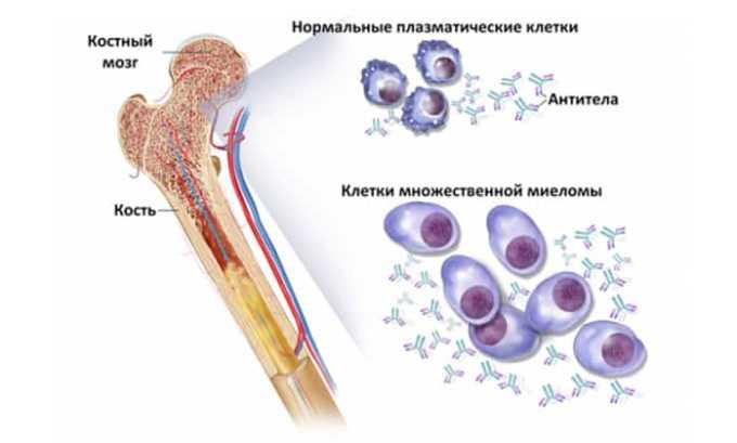 Также препарат показан при миеломе