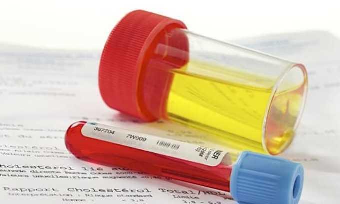 В комплексное обследование входят общие анализы мочи и крови