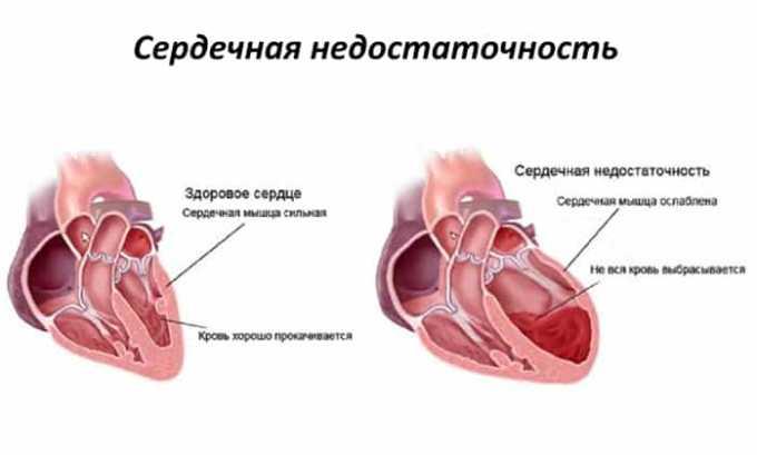 Аспаркам применяют при сердечной недостаточности
