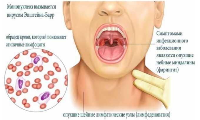 Антибиотик запрещено принимать при мононуклеоз