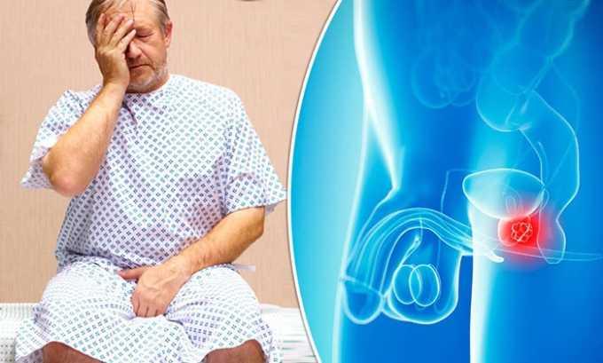 Лечение простатита, аденомы или карциномы простаты у мужчин (при инфекционном осложнении) успешно производится препаратом 5-нок
