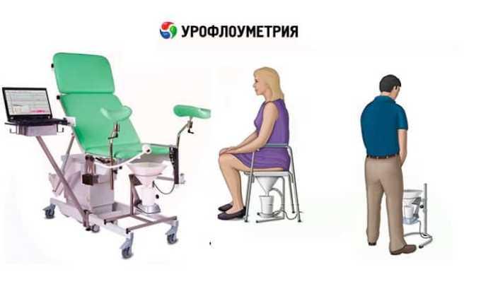 Урофлоуметрия - это метод диагностики, который заключается в измерении скорости мочеиспускания