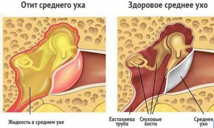 Препарат назначается для купирования острого болевого синдрома при отите