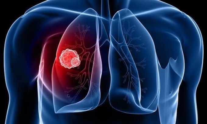 Пневмония - одно из показаний к применению Анальгина