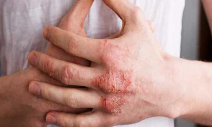Дексаметазон необходим для борьбы с экземой