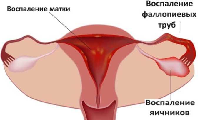 Фурамага 50 применяют при гинекологических воспалительных заболеваниях у женщин