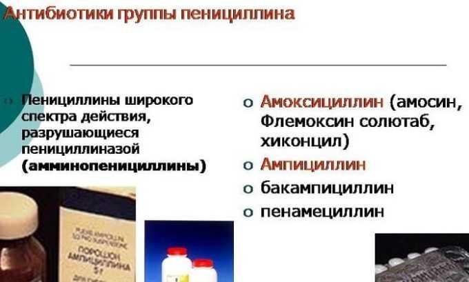 Антибиотики группы пенициллинов при цистите назначаются редко