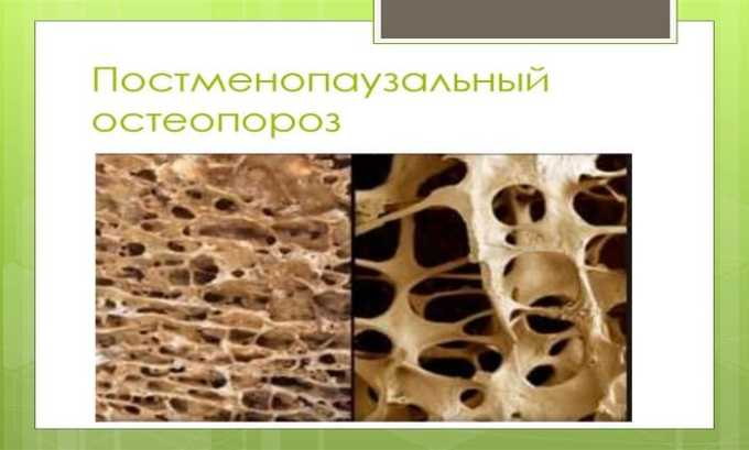 Постменопаузный остеопороз - показание к применению препарата Оксидевит